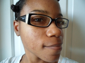 Skin Before - Acne Scars